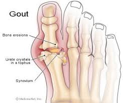 Obat Tradisional Gout Arthritis di Toko Acep